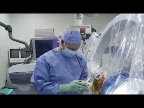 DBS surgery - actual procedure - Stanford