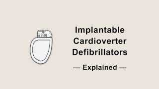 ICDs Explained  Ask the ICD