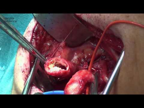 EEA   4 Eversionsendarteriektomie
