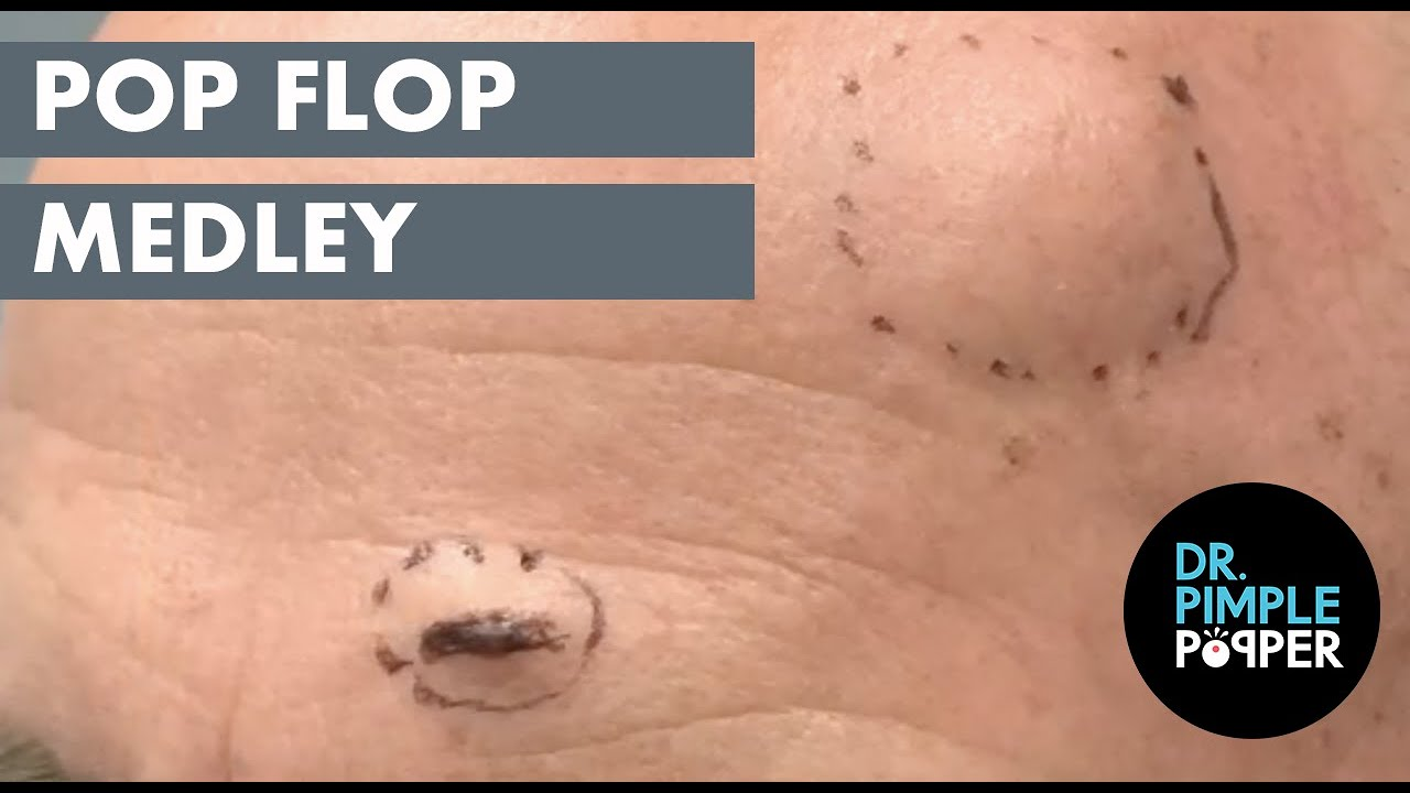 Pop Flop Medley! Steatocystoma and Blackheads