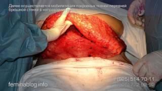 Абдоминопластика операция