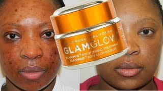 Acne Scars: Game Changing Products to get rid of Acne Scars