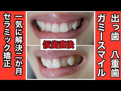 歯茎がみえるガミースマイルで噛み合わせが悪く前歯が出っ歯ぎみだった