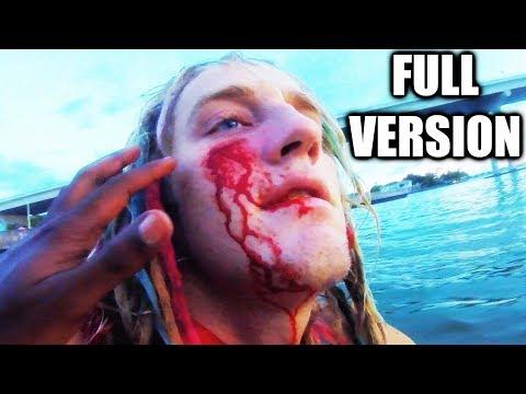 STUNT GONE WRONG!! (FULL VERSION) Worlds Biggest Beach Ball Vs. 90ft Bridge!! *9 Stitches*