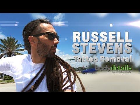 Amazing Tattoo Removal Treatment Progress   Russell Stevens   Body Details
