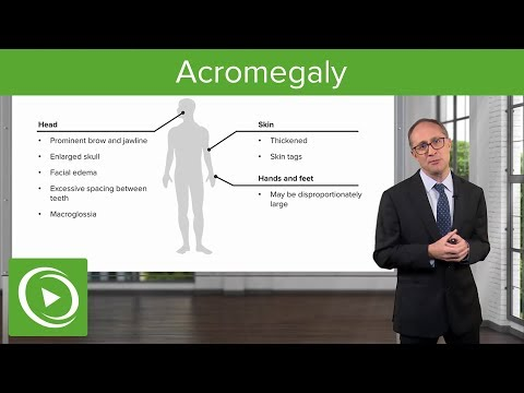 Acromegaly – Endocrinology | Lecturio