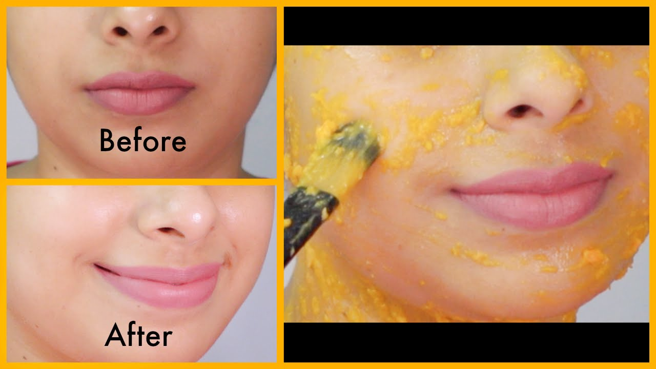 How to Get Flawless, Glowing, Fairer & Ageless Skin in 11 Week
