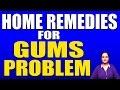 HOME REMEDIES FOR GUMS PROBLEM II मसूड़ों की समस्याओं के घरेलू उपचार II BY RUBINA KHAN II