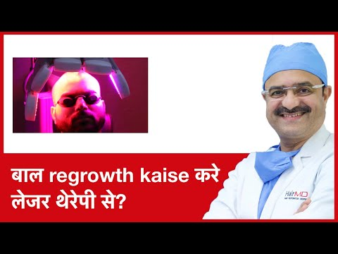 How to regrow Hair with Low level laser therapy(बाल regrowth kaise करे लेजर थेरेपी से) | (In HINDI)