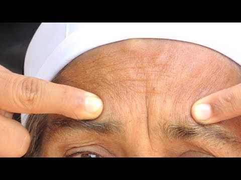best-for-forehead-wrinkles-|-anti-aging-skin-care-to-get-rid-of-frown-lines-on-forehead