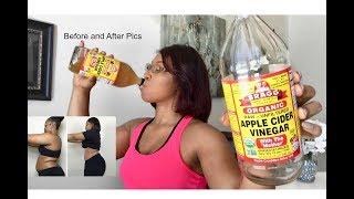 Drinking Apple Cider Vinegar   Lose weight FAST