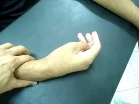 Neuropatia Periférica / Neuropraxia Nervo Radial EVOLUÇÃO Clínica de Fisioterapia Dr. Robson Sitta