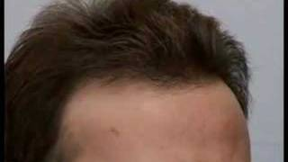 Hair Transplant Video Results - Dr. Cole
