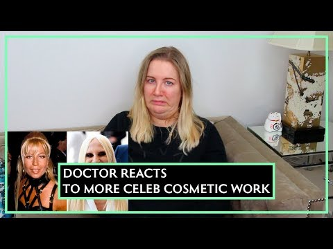Doctor Reacts To MORE Celeb Filler Fails