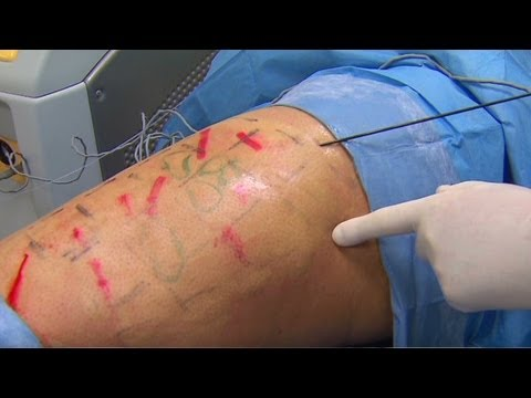 Contour Clinic - Dr. Sanjay Gupta reports on Cellulaze.