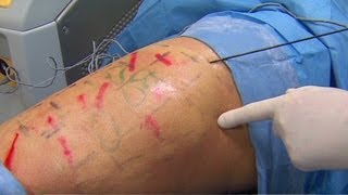 Dr. Sanjay Gupta reports on Cellulaze.