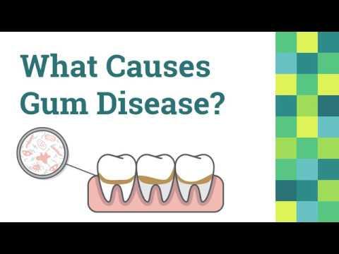 Gum Disease in Henderson, NV - Galleria Family Dental