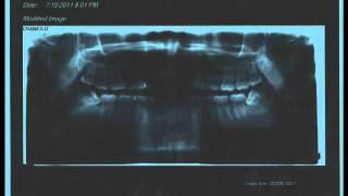 Afrojack & R3hab vs. Sandro Silva & Quintino - Epic Prutata (Wisdom Teeth MashUp)