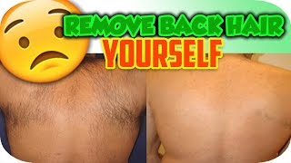 Back Hair Removal   Remove Back Hair