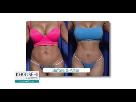 Before & After benefits of Fat Grafting