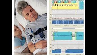 Apnea Link - Sleep Study Replacement? Part Three CPAPclinic.ca