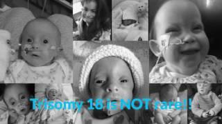 Emilys Story  - Trisomy 18 awareness
