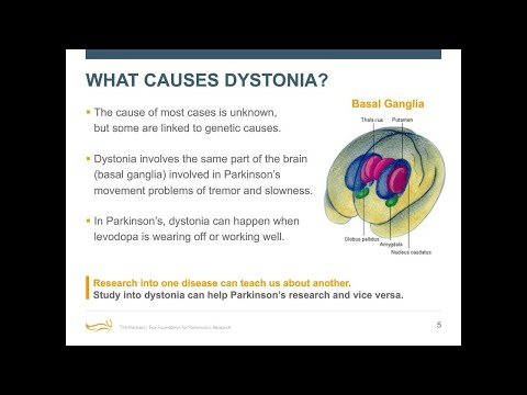 """Webinar: """"Cramping More than Your Style: Dystonia Causes and Care"""" September 2018"""