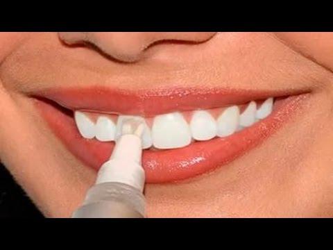 отбеливание зубов при флюорозе