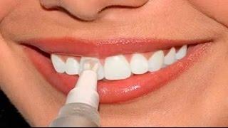 видео отбеливание зубов