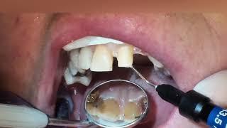 Установка мостовидного зубного протеза, мост