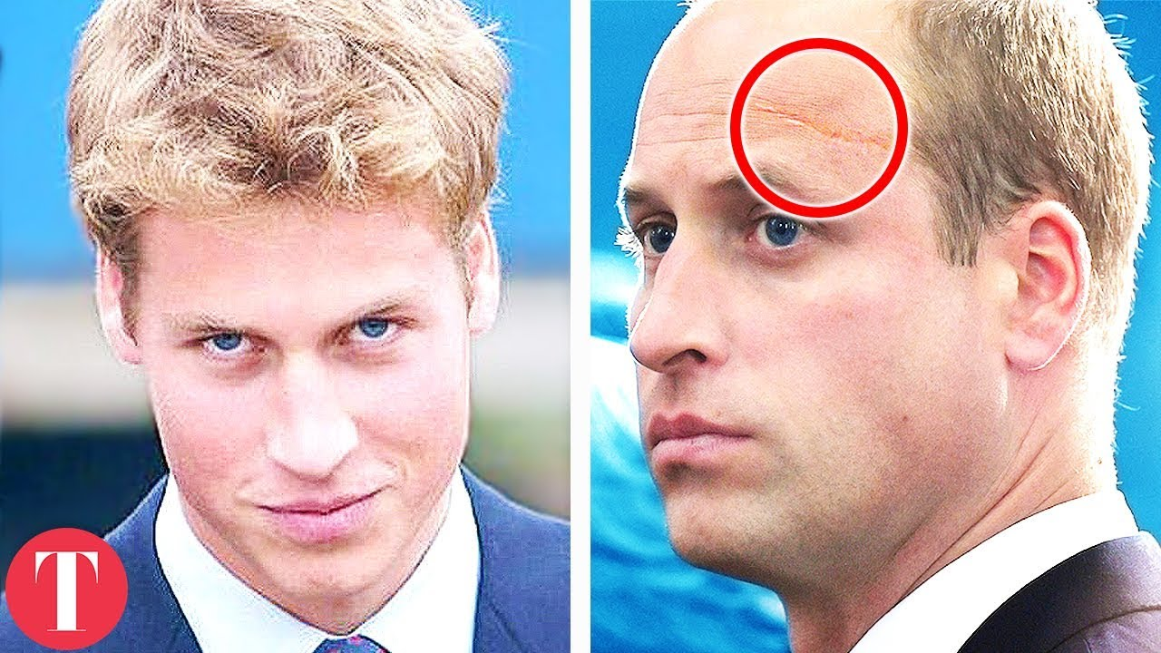 The True Story Behind Prince William And Prince Harry's Dark Past