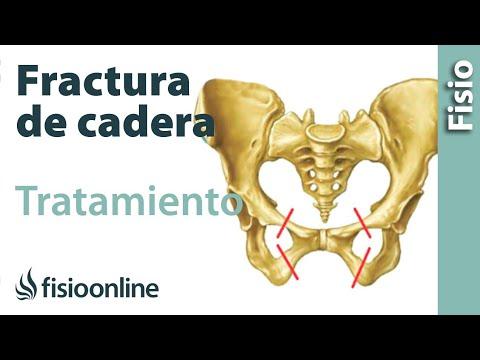 Fracturas de fémur, cadera y pelvis - Tratamiento y cuidados para su recuperación