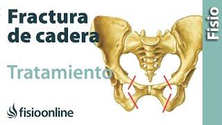 El manejo del fractura de por para cadera dolor Pautas