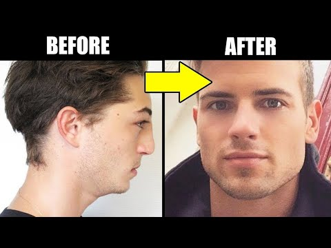 6 WAYS to INSTANTLY Have A BETTER Looking FACE | How to Have a Chiseled and Stronger Jawline