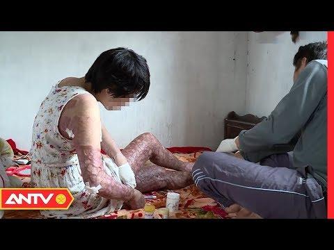 Vợ đẫm nước mắt kể chuyện bị chồng thiêu sống | Người giấu mặt | ANTV