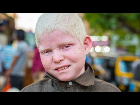 25 Facts About Albinism We Might Want To Be Aware Of