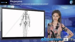 Что вызывает воспаление лимфатических узлов?