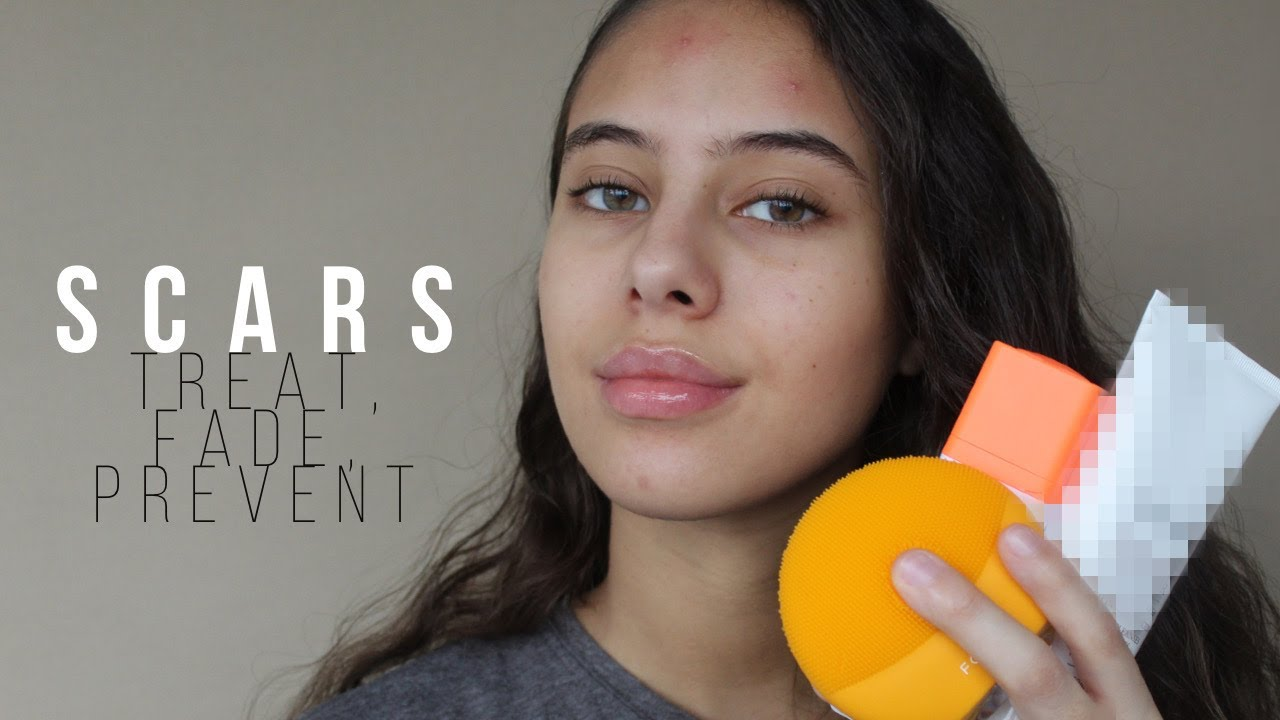 SCARS - HOW TO PREVENT AND TREAT THEM | Jessicvpimentel