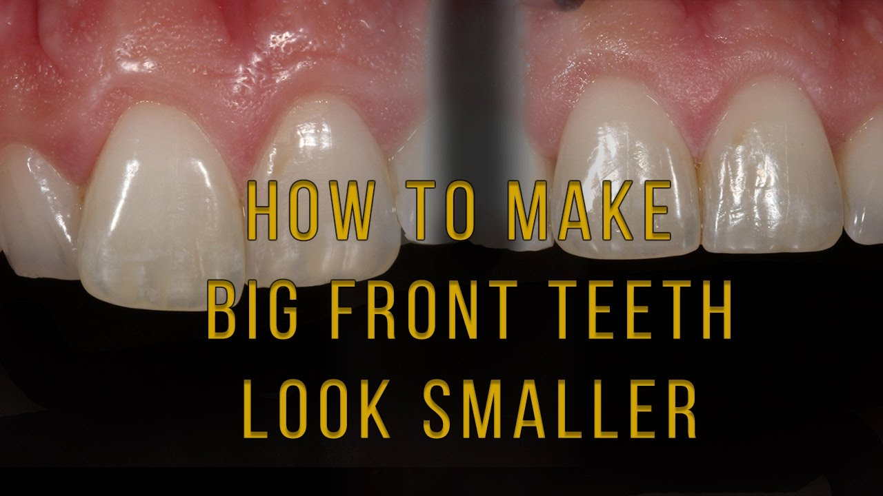 What To Do If One Tooth Looks And Long