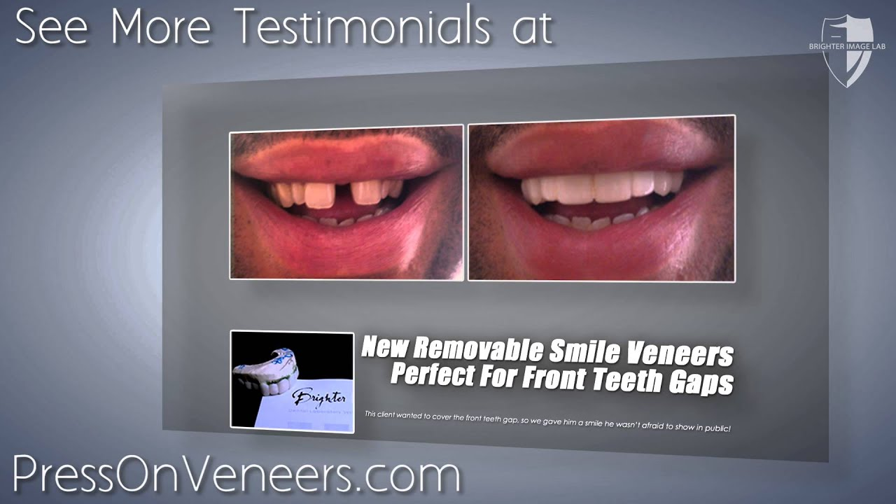cover front teeth gaps with press on veneers youtube