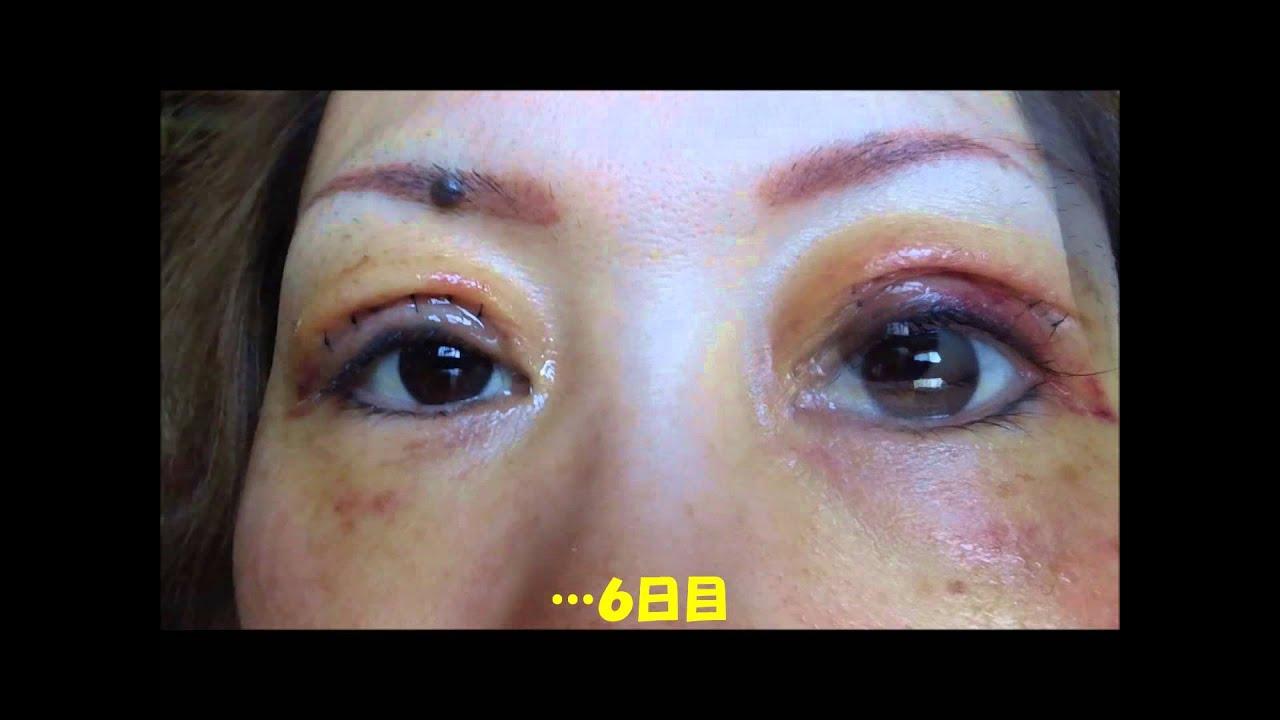 眼瞼下垂 ~手術経過9日の記録~ , YouTube