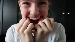 Invisalign Attachment Gummi und Zahnspange