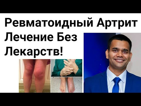 Ревматоидный Артрит- Лечение Без Лекарств