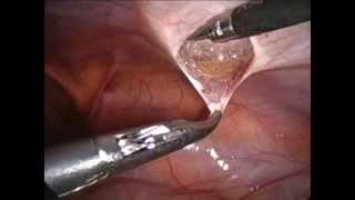 LAPAROSCOPIC INGUINAL HERNIOPLASTY WITH BARD 3D MAX MESH BY  PROF. P.K REDDY