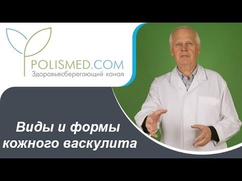 Геморрагический васкулит: лечение, симптомы, фото, диета