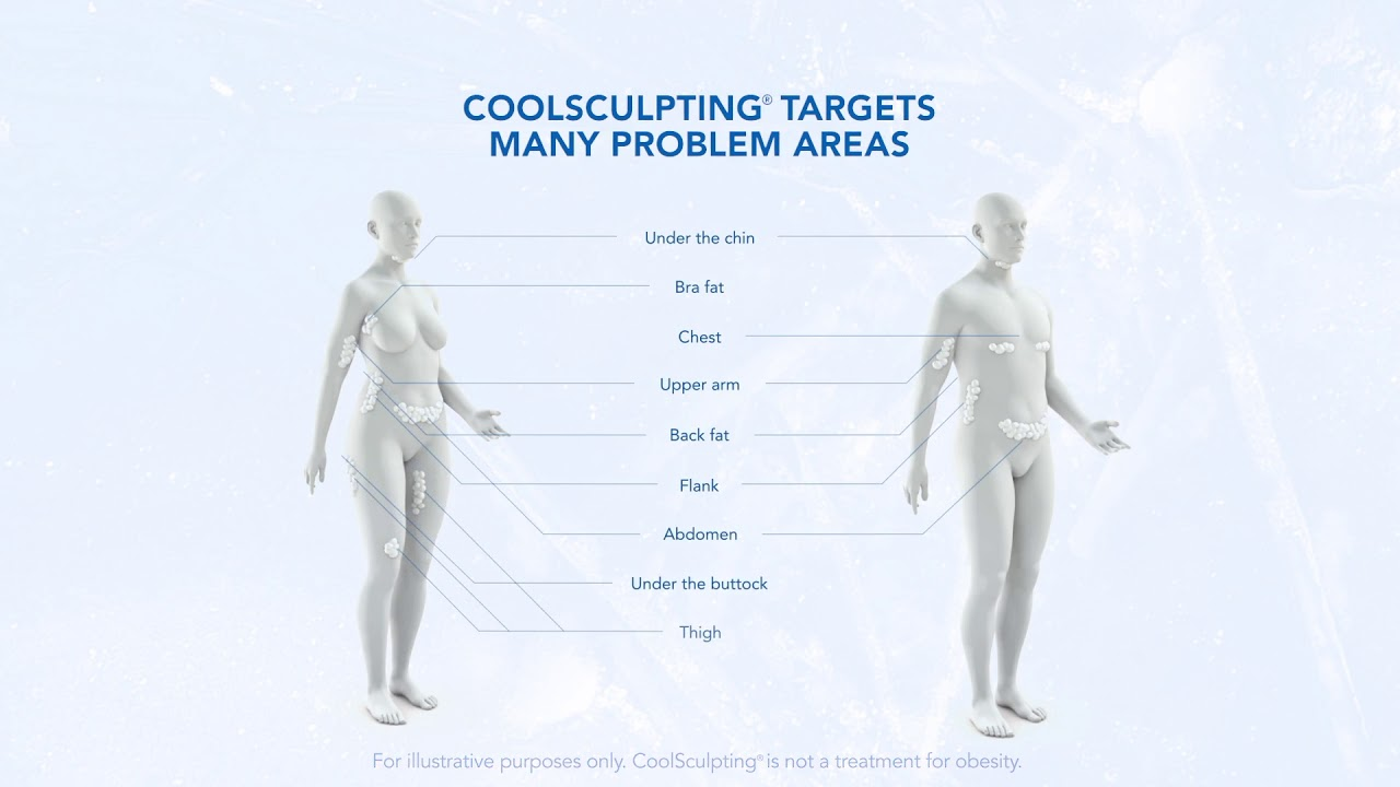 coolsculpting how & where it works