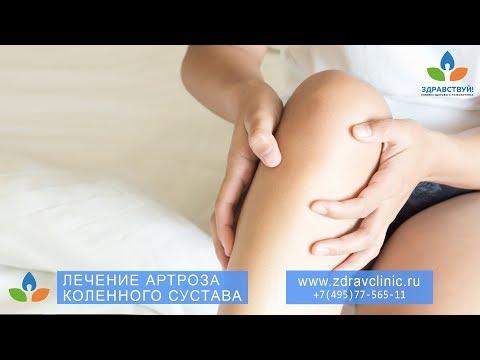 "Лечение артроза коленного сустава. Клиника ""Здравствуй!"" в Москве"