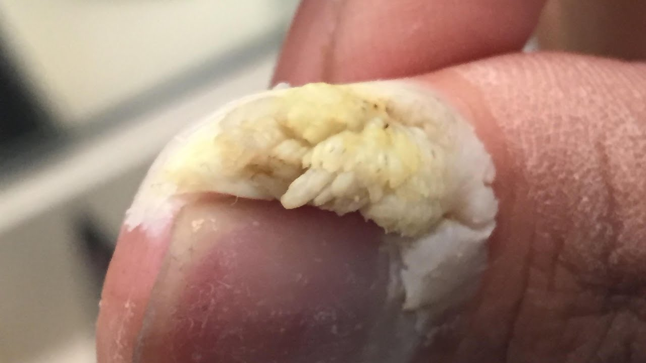 Ingrown hair genital wart