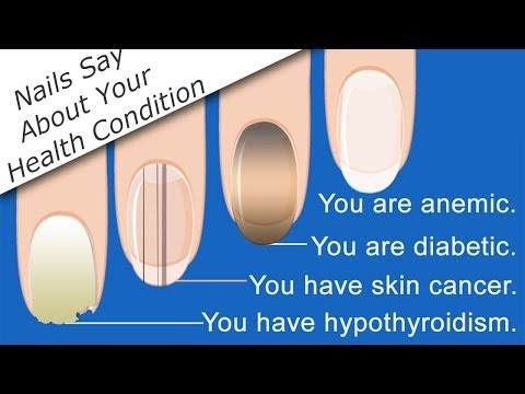 What Your Nails Say About Your Health Condition