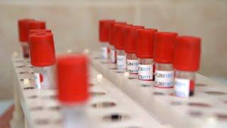 Россия отвечает на претензии отстающих конкурентов о разработанной вакцине против коронавируса